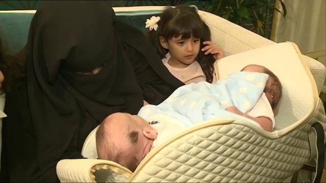 استعدادا لعملية الفصل .. مستشفى الملك عبد الله تستقبل التوأم السيامي الليبي الملتصق